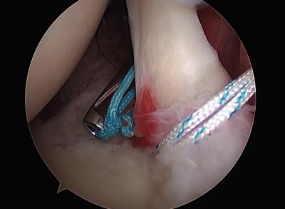 Artroscopia de hombro - Dr. Mateo Traumatólogo deportivo